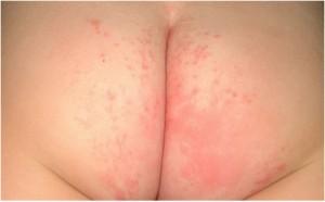 dermatitis del pañal.png