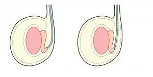 testiculos invertidos