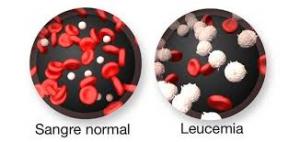 leucemia2